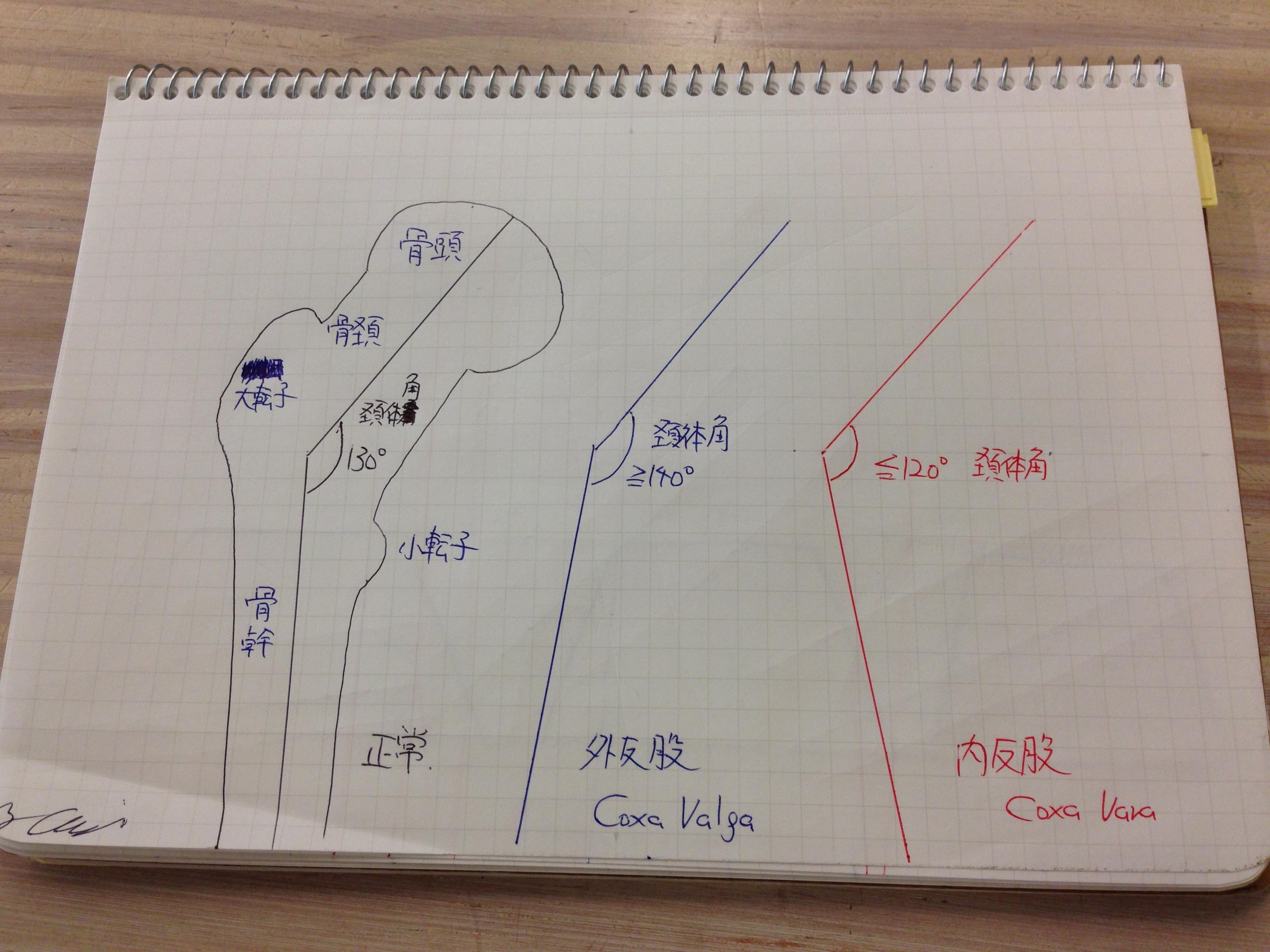 頚体角(Angle of Inclination)