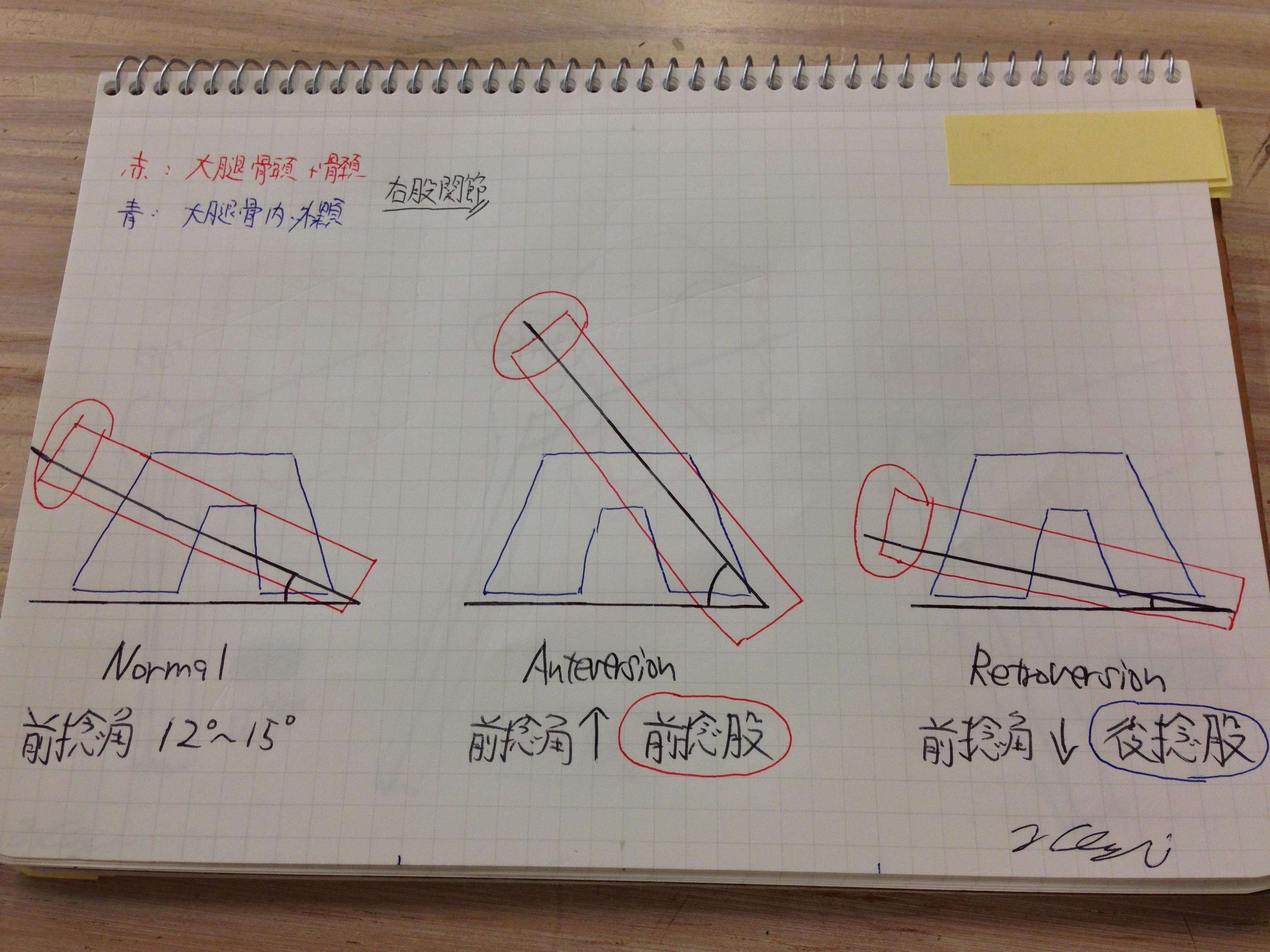 捻転角(Angle of Torsion)