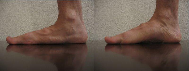 右がShort Footの状態です。 Foundation Pilatesより