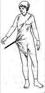 筋膜を服に例えると… http://rpm-therapy.com/wp-content/uploads/2012/04/fascial-web-of-pain-and-dysfunctionjpg.jpg より